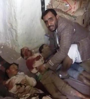 Almotamar Net - The death toll from the Saudi aggression coalition airstrikes on a hotel and popular market in Saada province rose to 29 civilians on Wednesday. 